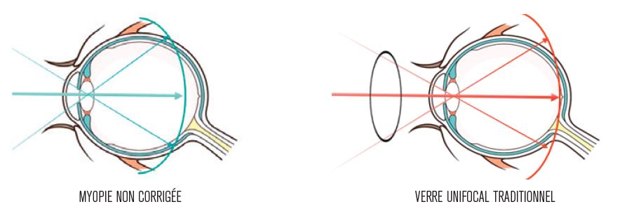 Verre Hoya MiYOSMART Vision